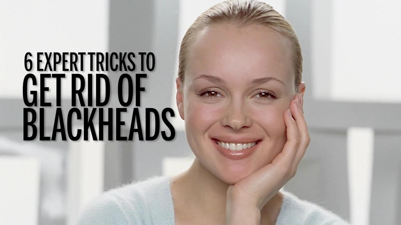 Myth: Blackheads are dirt in your pores
