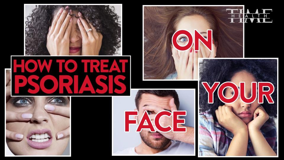 What to know about facial psoriasis