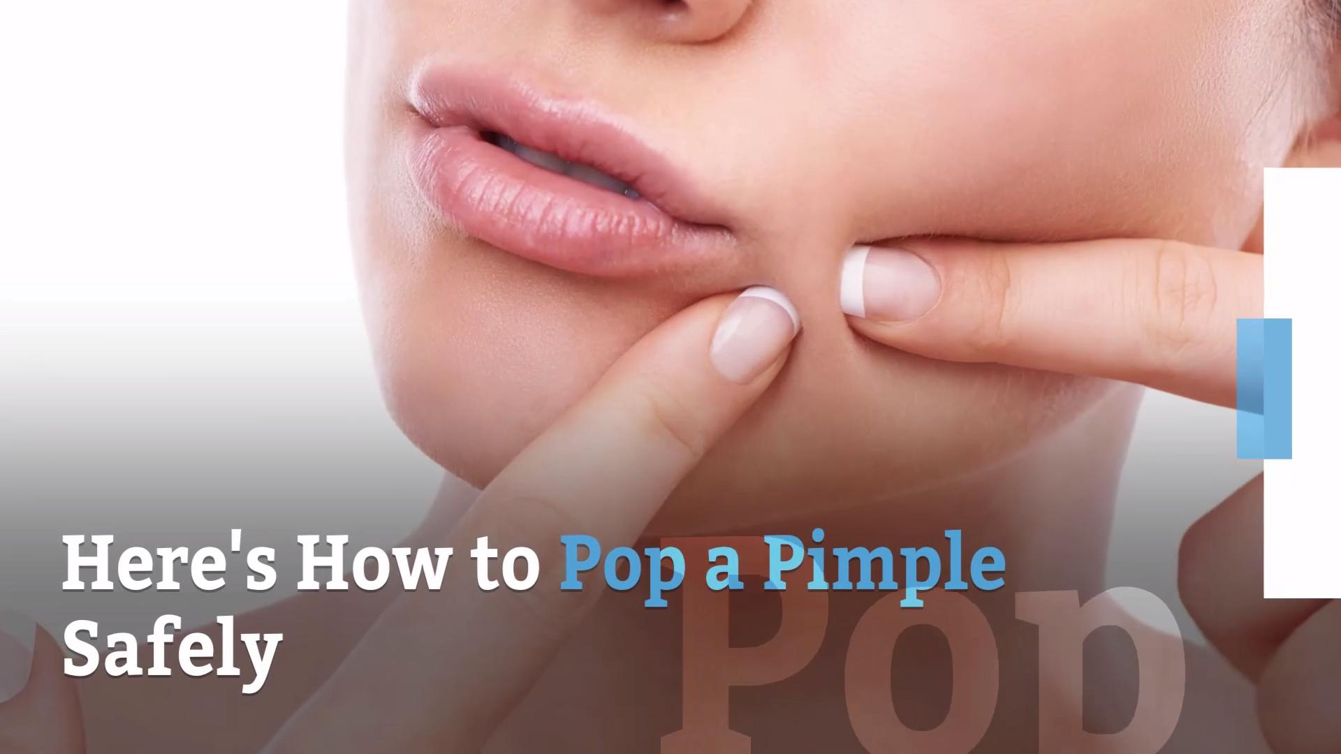 Should you pop a pimple?