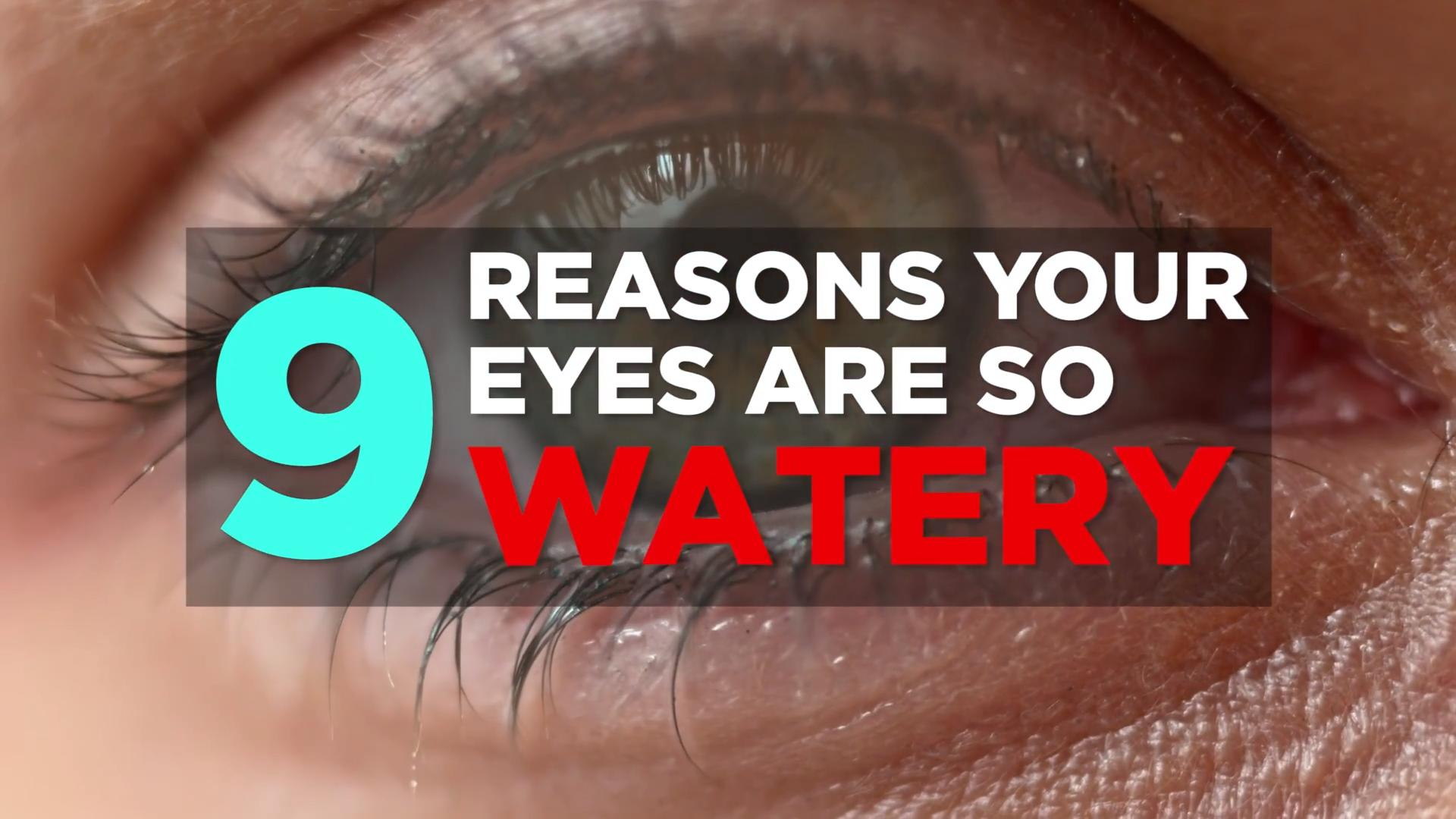 how to get rid of red watery eyes