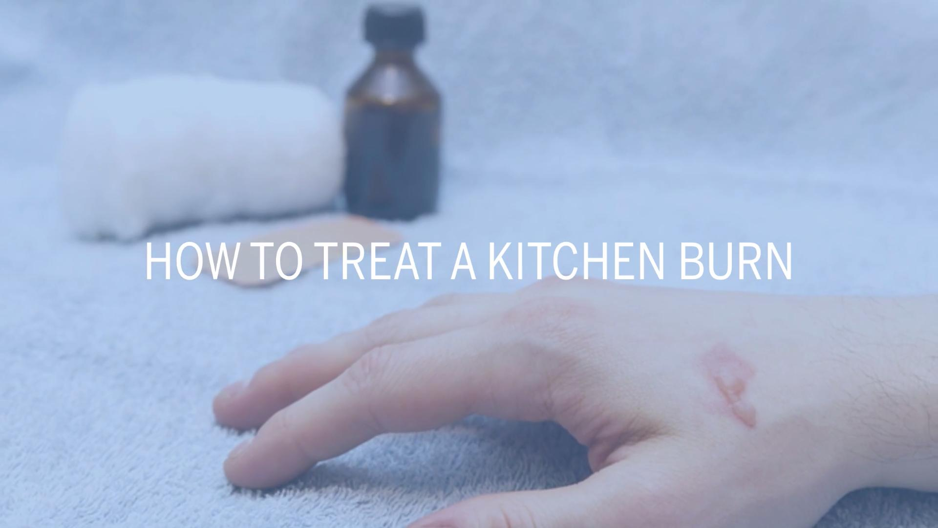 How to Treat a Burn at Home - Health