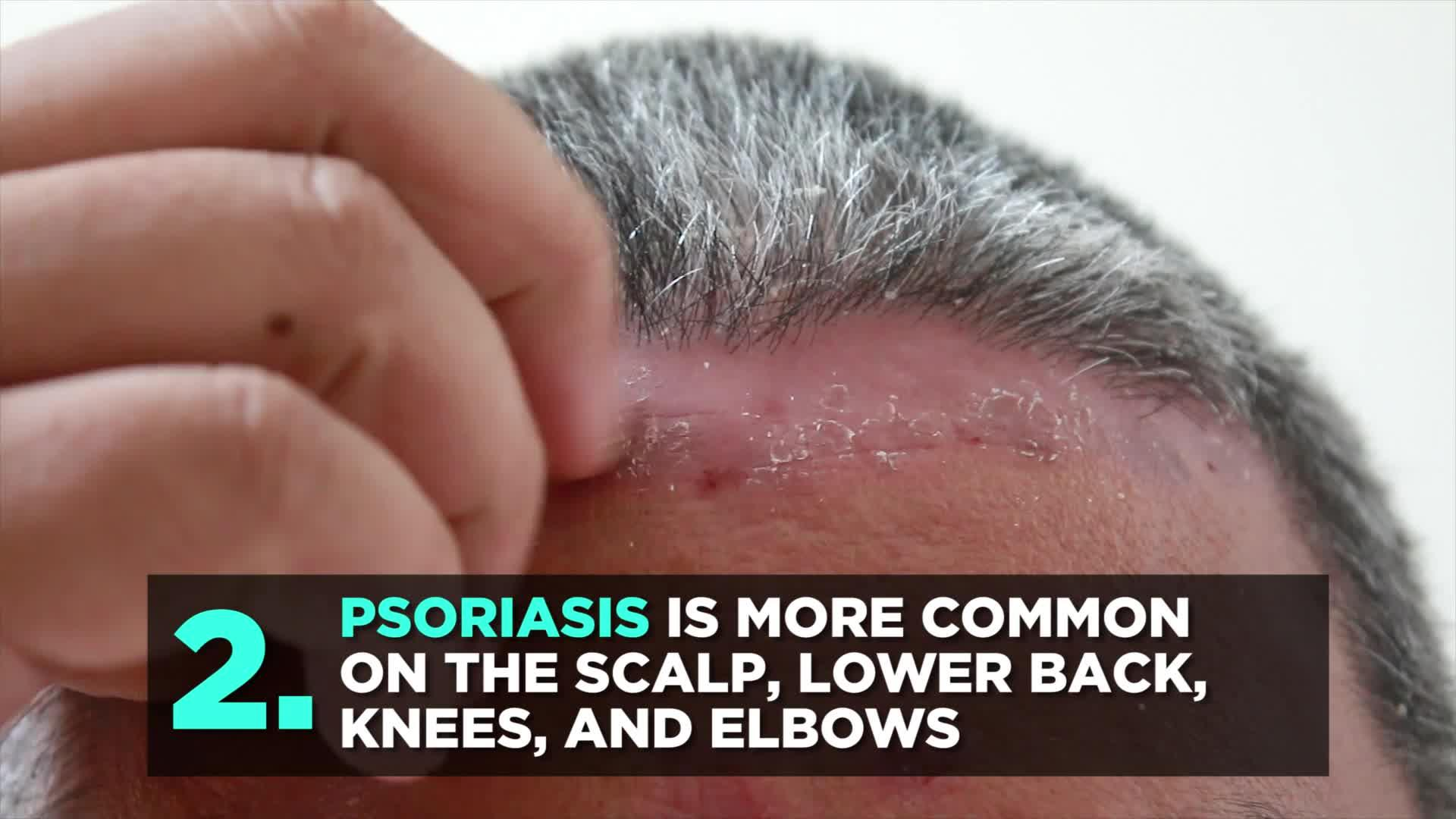 4 Things To Know About Scalp Psoriasis, According To Dermatologists
