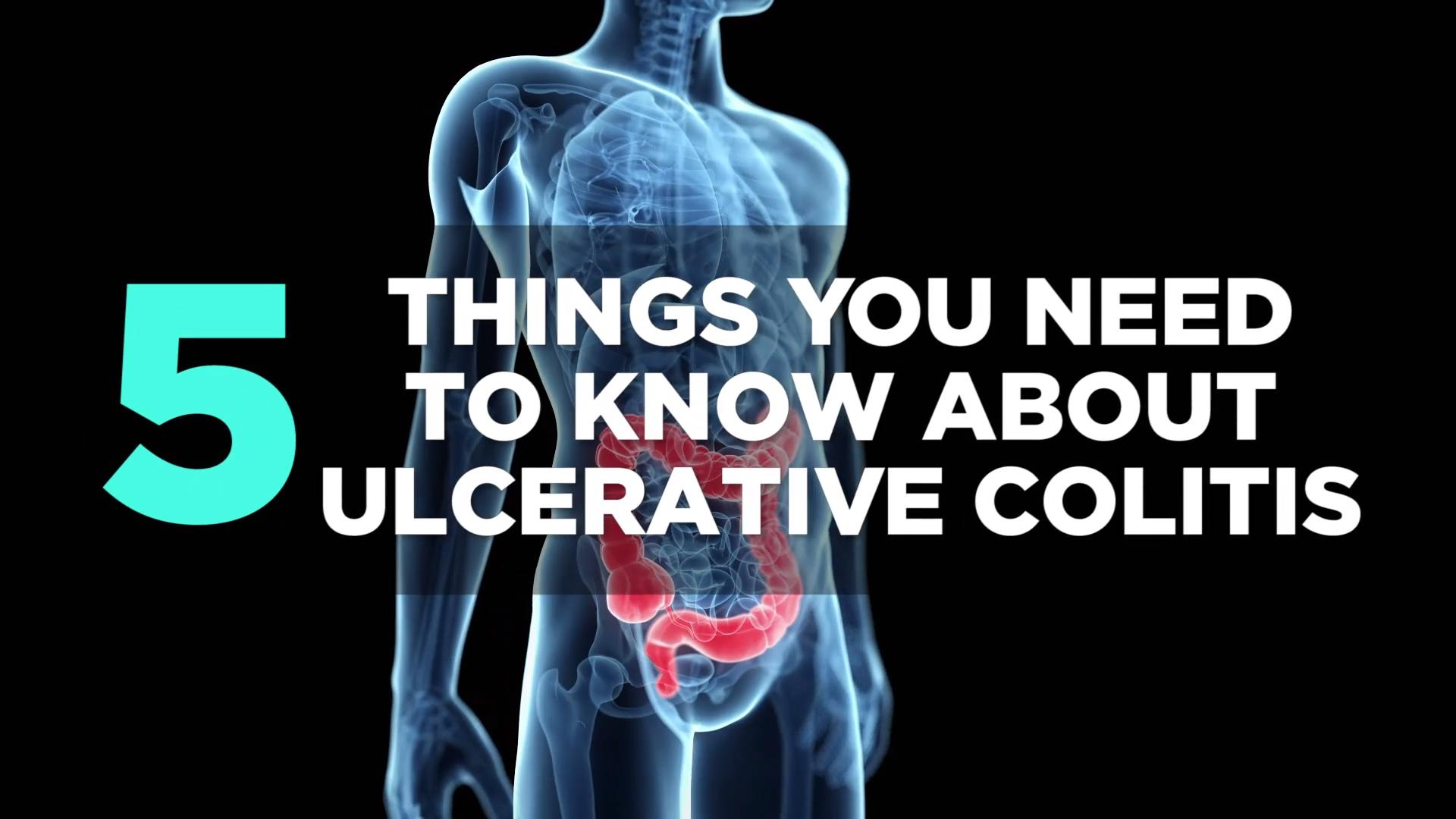 Everyone Thinks I'm the Picture of Health—but Every Day I Struggle With Ulcerative Colitis