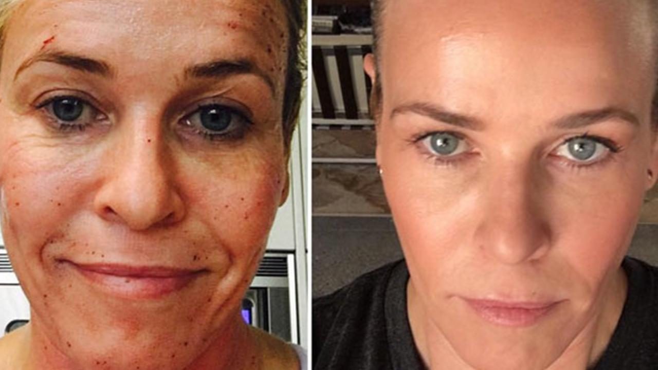 Chelsea Handler's 'Awesome' Before-And-After Photos: Behold, the Power of  Lasers