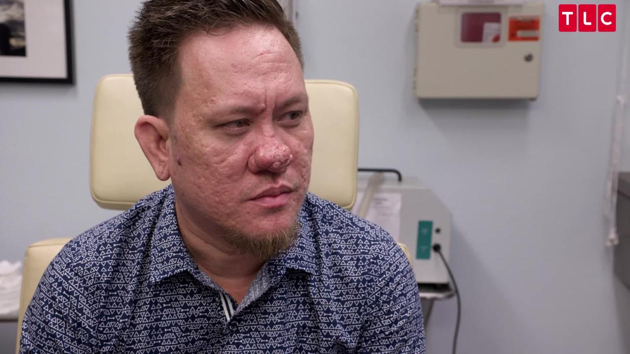 Dr  Pimple Popper Season 2 Clip: Dr  Sandra Lee Examines Nose Bump